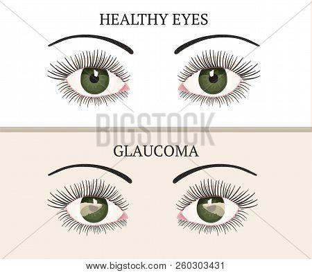 Eye Disease. Ophthalmology Flat Health Vector Illustration. Glaucoma Chronic Eye Pathology.