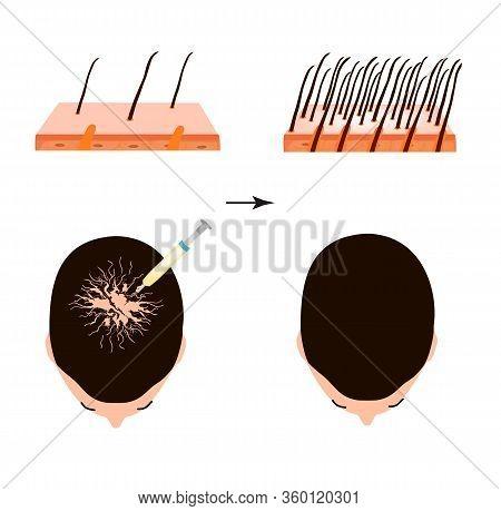 Treatment Of Alopecia. Bald Spot, Baldness, Alopecia Mesotherapy. Infographics. Vector Illustration