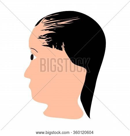 Alopecia Hair. Baldness Of Hair On The Head. Telogen Alopecia. Infographics. Vector Illustration On