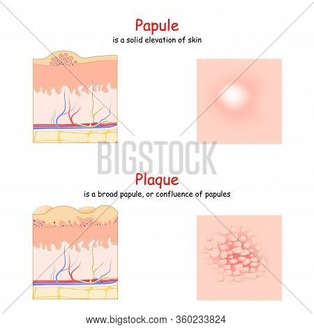 Skin Lesion. Papule And Plaque. Side And Top View. Cross Section Of The Human Skin. Papule Is A Soli