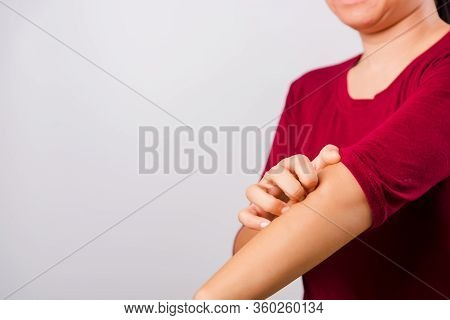 Asian Beautiful Woman Itching Her Scratching Her Itchy Arm On White Background With Copy Space, Medi