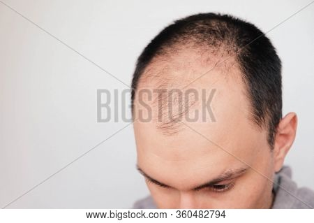 Young Man Losing Hair On Temples, Close Up.