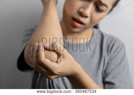 Women With Pain In Elbow.