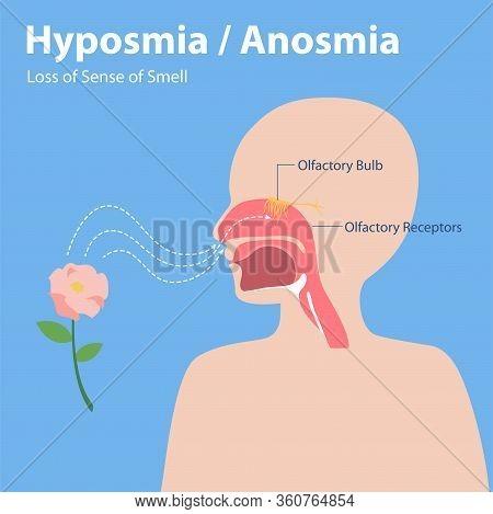 Hyposmia Anosmia, Loss Of Sense Of Smell Info Graphic Elements The Signs Of Corona Virus Symptoms ,