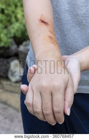 The Wound Form Scabs On Hand And Arm. The Wound Happen During Woman Injuries From Falling Down On Ro