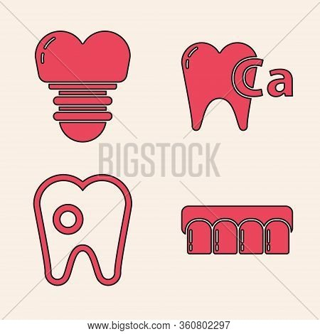 Set Dentures Model, Dental Implant, Calcium For Tooth And Tooth With Caries Icon. Vector
