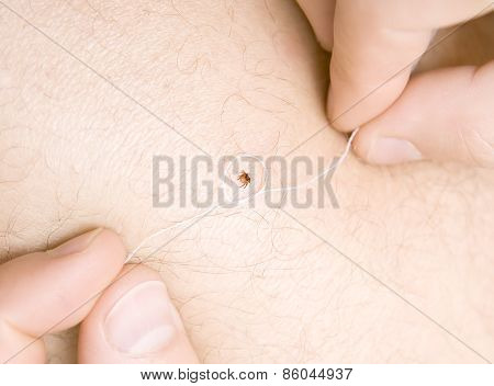 correct removing a tick with thread from skin of patient poster