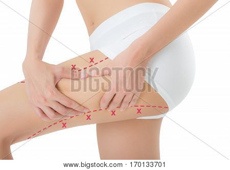 woman grabbing skin on her thigh with the red color crosses marking Lose weight and liposuction cellulite removal concept Isolated on white background.
