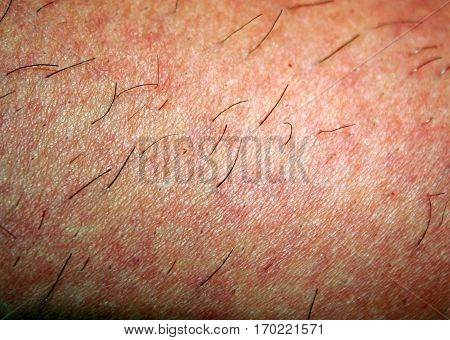 Regrown hair on the skin after shaving. Depilation. Reddened skin.