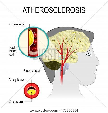 atherosclerosis in the blood vessel of the human brain. Cerebral artery with atherosclerosis. Artery wall thickens as a result of the accumulation of calcium fat and cholesterol. It reduces the elasticity of the artery.