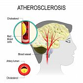 atherosclerosis in the blood vessel of the human brain. Cerebral artery with atherosclerosis. Artery wall thickens as a result of the accumulation of calcium fat and cholesterol. It reduces the elasticity of the artery. poster