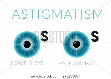 Astigmatism With Healthy Eye. Diseases Of The Eye. Comparative Illustration.