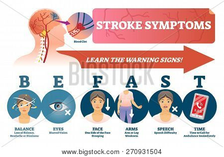 Stroke Symptoms Vector Illustration. Warnings Of Sudden Blood Clot In Head. Labeled List With Reason