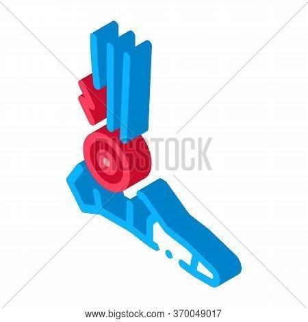 Rheumatoid Arthritis Of Foot Icon Vector. Isometric Rheumatoid Arthritis Of Foot Sign. Color Isolate