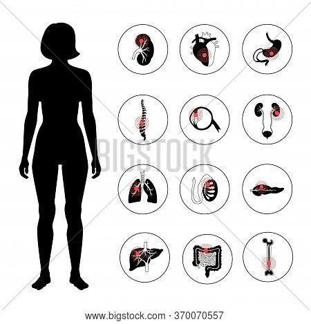 Set With Flat Vector Isolated Illustrations Of Pain And Inflammation In Adult Human Female Body. Dig