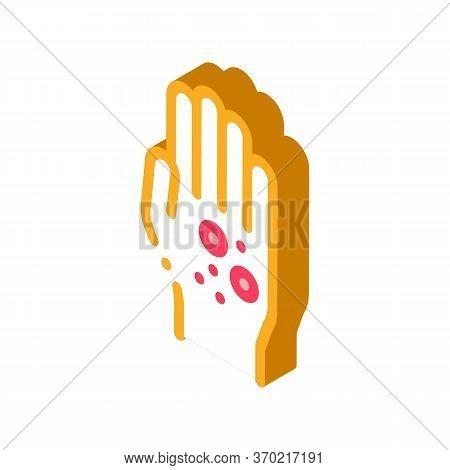 Dermatitis Rash On Hands Icon Vector. Isometric Dermatitis Rash On Hands Sign. Color Isolated Symbol