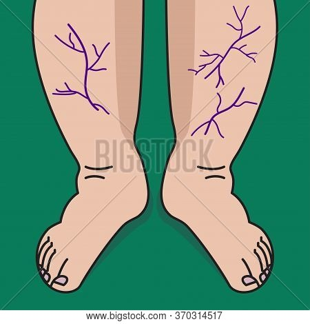 Varicose Veins On Legs Of Woman. Veins And Vessels On Shins