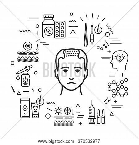 Cause Of Hair Fall And Treatment For Alopecia Infographics With Linear Icons On White Background. Cr