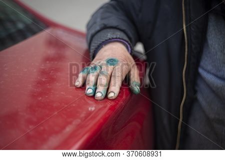 Hand Injury In A Homeless Person. A Mans Hand Is Smeared With Green From Wounds. Human Hand Treatmen