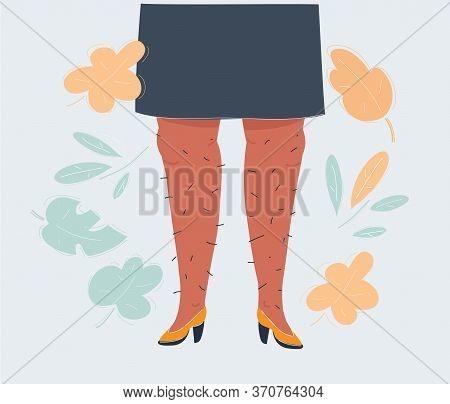 Vector Illustration Of Hairy Legs On White Background