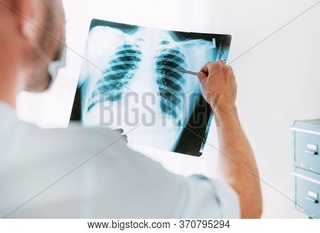 Male Doctor Portrait Throught The Patient Chest X-ray Film Lungs Scan At Radiology Department In Hos