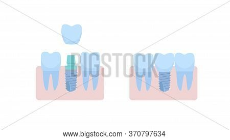 A Dental Implant Placed Between Two Healthy Teeth, The Abutment Is Covered With A Crown. Vector Illu