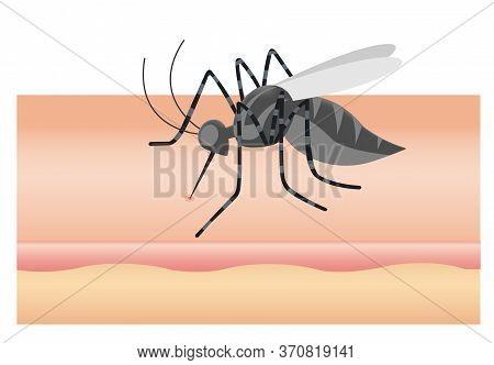 Mosquito Sucking Blood Through Human Skin Icon. Symptoms Of Dengue Fever, Sika Virus, Mosquito-borne