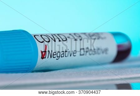 Macro Photo Of A Test Tube With A Blood Sample. Negative Test For Covid-19, On A Blue Background.