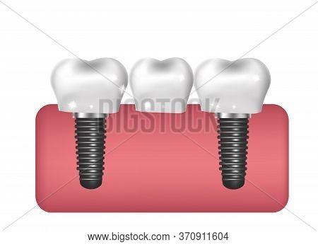 Dental Implants, Bridge Construction, Prosthetics 3d Realistic Style. Dentistry, Healthy Teeth Conce