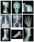 collection of x-ray pictures isolated on black background. cervical spine, skull, shoulder, chest, abdomen and back, hand, ankle, foot and knee poster