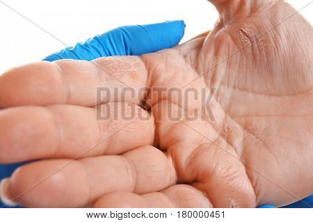 Doctor examining patient with dermatitis on hand, closeup