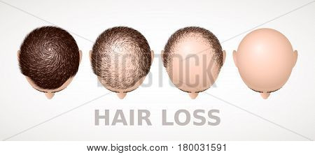 Hair loss. Set of four stages of alopecia. Eps8. RGB Global colors