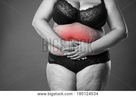Fat woman with menstrual pain endometriosis or cystitis stomach ache overweight female body on gray background black and white photo with red spots