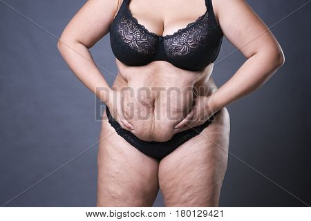 Woman with fat abdomen overweight female stomach stretch marks on belly closeup gray studio background