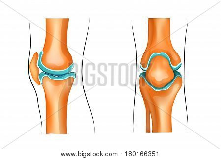 vector illustration of a healthy knee joint