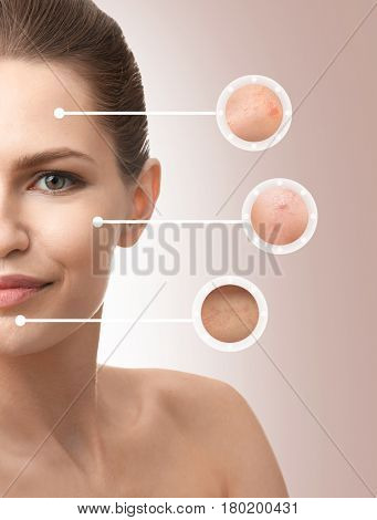 Young woman before and after cosmetic procedure on color background
