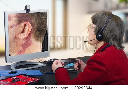 Telemedicine female dermatologist in headset observes at birthmark on computer monitor attentively. Virtual doctor looks at man having a big red birthmark on his face and neck either by online video chat or snapshot. Horizontal mid-shot on blurry indoors