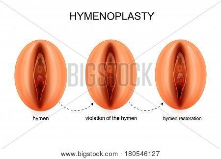 vector illustration of a hymen restoration. gynecology