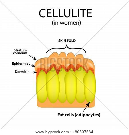 Skin aging in women. Cellulitis. Infographics. Vector illustration on isolated background.