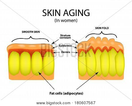 Skin aging in women. Infographics. Vector illustration on isolated background.