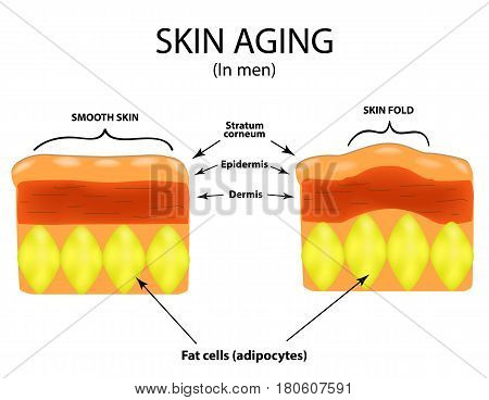 Skin aging in men. Infographics. Vector illustration on isolated background.