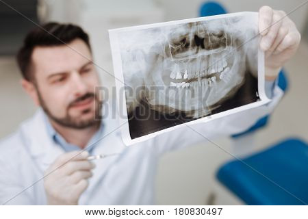 Conducting a research. Distinguished thorough professional doctor using an xray picture for diagnosing his patient before prescribing any treatment