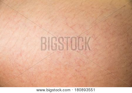 Closed up of vericose veins on female leg background