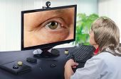 Telemedicine female ophthalmologist looks at epidermal cyst on right upper eyelid on monitor seriously. Virtual doctor observes mans cyst either by online video conference or snapshot. Horizontal mid-shot on blurry indoors background poster