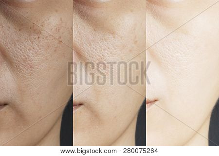 Three Pictures Compared Effect Before And After Treatment. Skin With Problems Of Freckles , Pore , D
