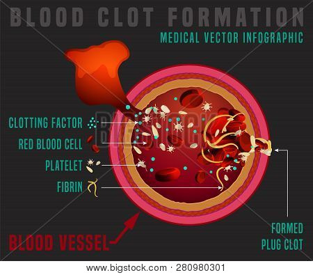 Blood Clotting Process. Vessel Cut. Medical Infographic In Detailed Realistic Style. Editable Vector