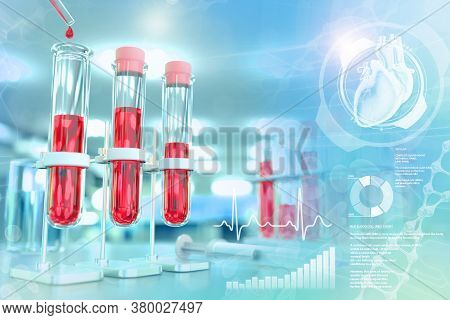 Test Tubes In Chemistry Clinic - Blood Sample Test For Fasting Blood Sugar Or Cholesterol, Medical 3