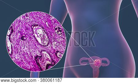 Uterine Cancer, 3d Illustration And Light Micrograph Showing Malignant Tumor In The Female Uterus