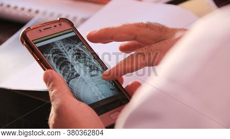 Aleppo, Syria, February 12, 2020:\na Doctor Takes An X-ray Of The Patient