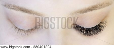 Eyelash Extensions. Closeup Of Eyes With Extended Eyelashes And Without Extended Eyelashes, White Gi